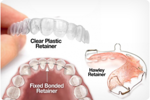 retainers included with orthodontic treatment